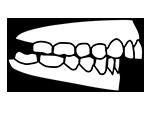 Icono de maloclusion de tipo Clase II