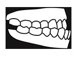Icono de maloclusion de tipo Clase III